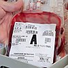 Patient Blood Management in Maternity